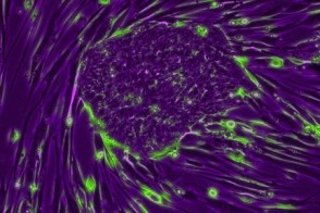 Embryonic Stem Cells on Feeder Cells
