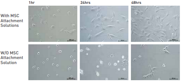 mesenchymal stem cells were cultured in MSC NutriStem® XF with and without MSC Attachment Solution