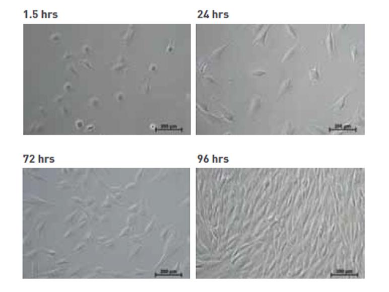 mesenchymal stem cells after cryopreservation using MSC Freezing Solution