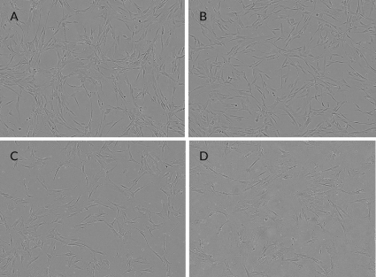 Appearance of cells grown in media supplemented with PLTMax (A), PLTGold (B) compared against FBS (C) and human AB serum (D).