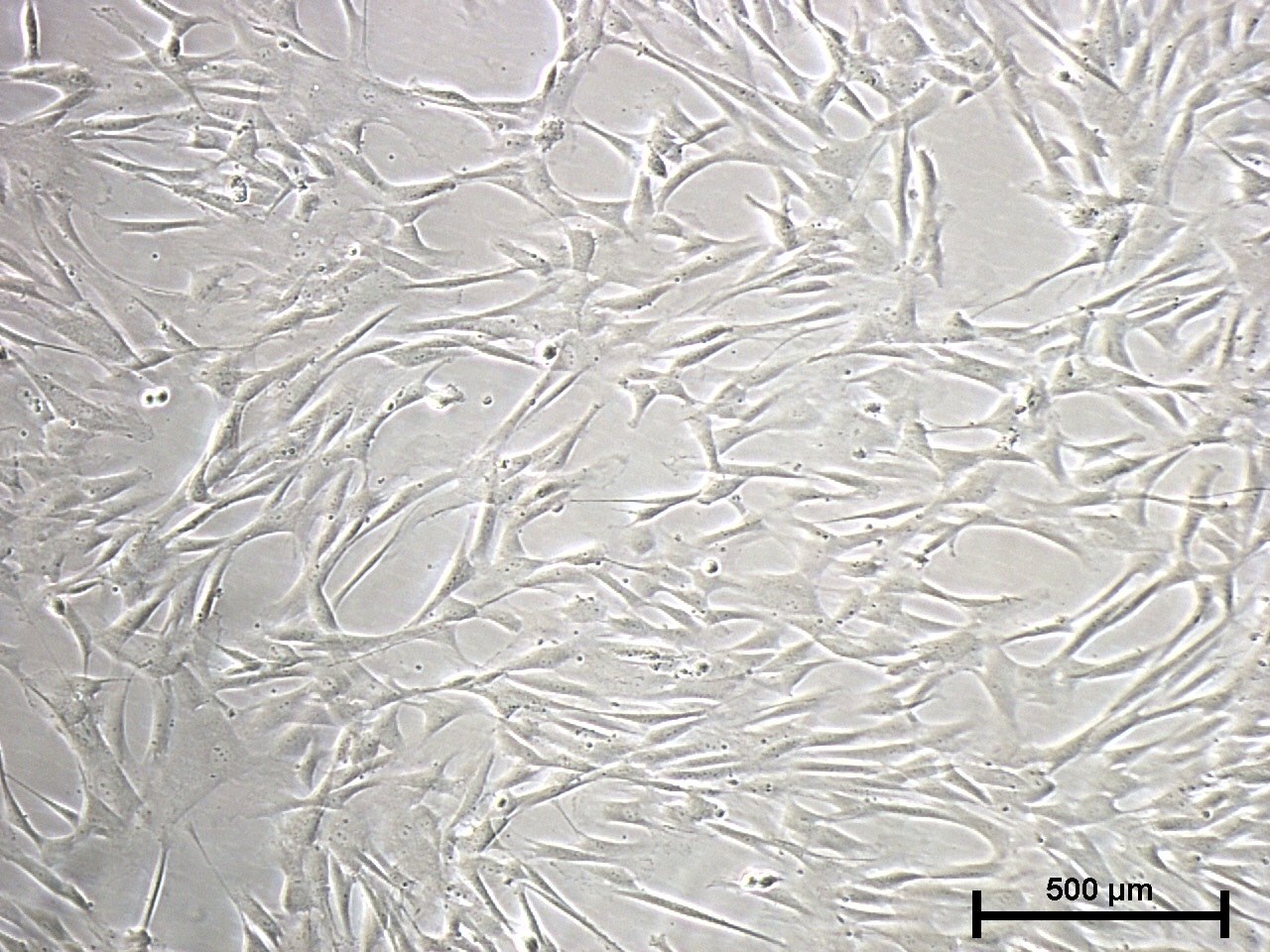 mesenchymal stem cells after dissociation with Trypsin EDTA Solution