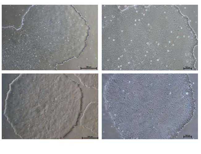 hiPS & hESC Normal Colony Morphology on NutriStem medium.