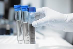 EZ Lympho-Sep™- Lymphocyte Separation Tubes
